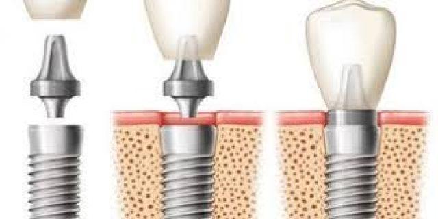 Implanturi